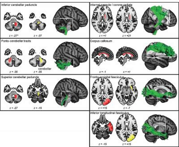 This image shows a range of MRI brain scans from the study.