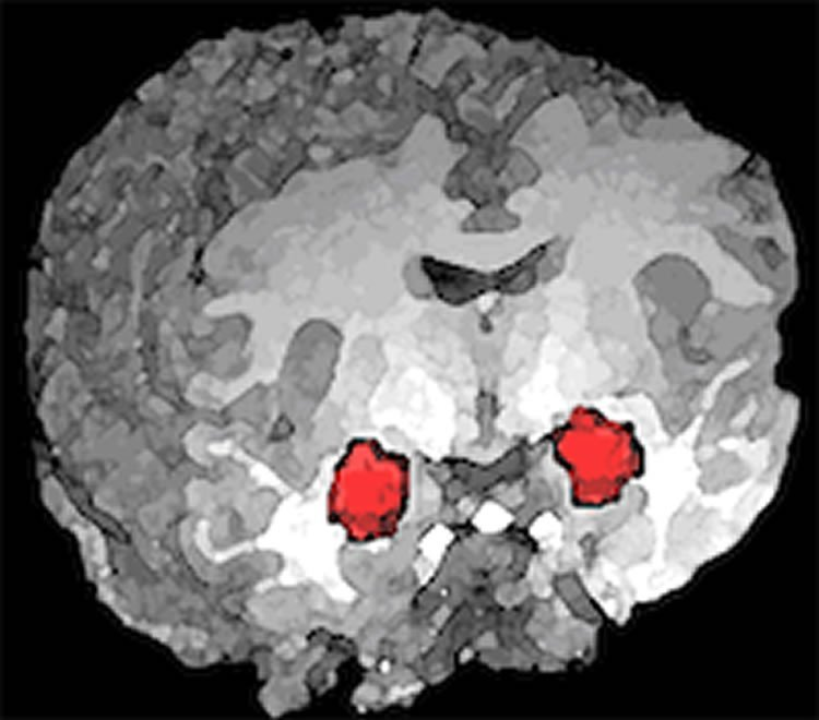 This image shows the location of the amygdala in the human brain.