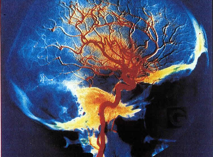 The image shows arteries in the brain.