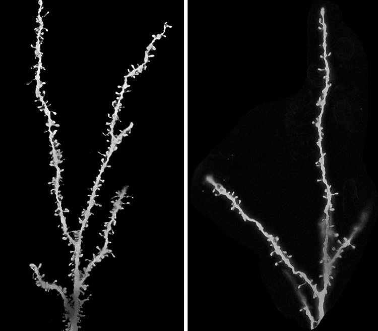 The image shows neurons from a control brain and a brain of a person with autism.