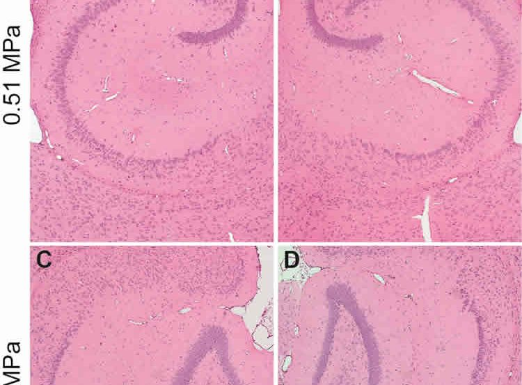 The image shows histological brain slices of the hippocampus.