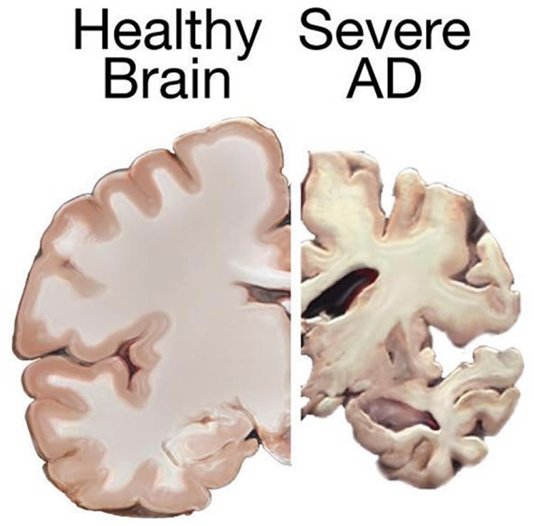 This image shows brain slice from a healthy brain and one from a brain affected by alzheimer's disease.