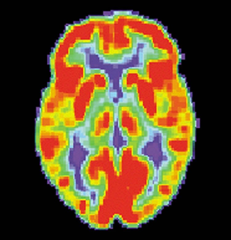 The image shows a PET scan of a normal brain.