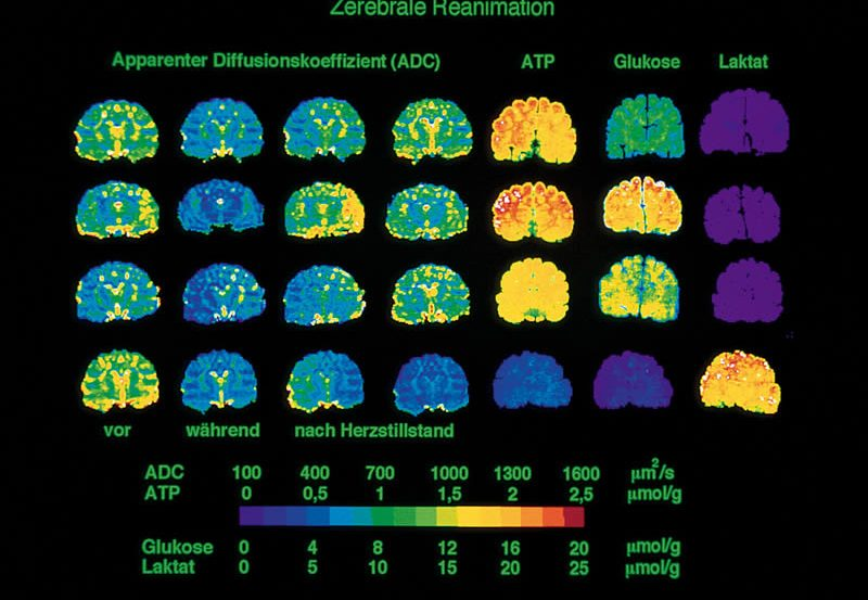 This image shows mri brain scans taken 15 minutes after a cardiac arrest.