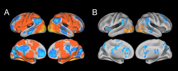 The image shows fMRI scans taken from the participants in the study.