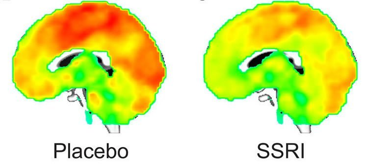 This image shows the difference between the placeno and medicated brain in an mri scan.
