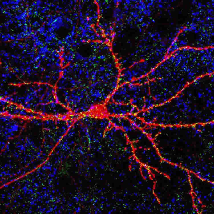 This image shows a neuron stained bright pink.