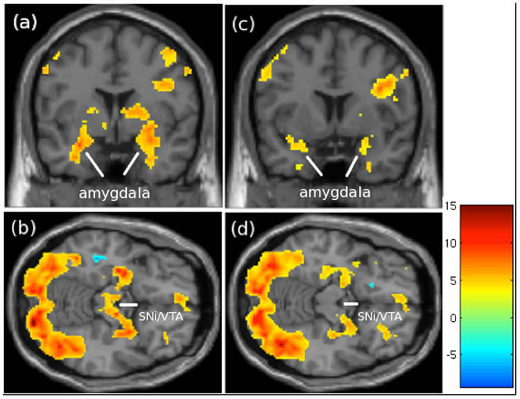 The image shows fmri scans from the research.
