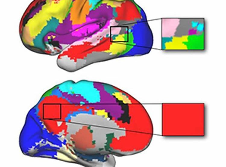 This image shows two brain scans colored to show the different networks in the brain.