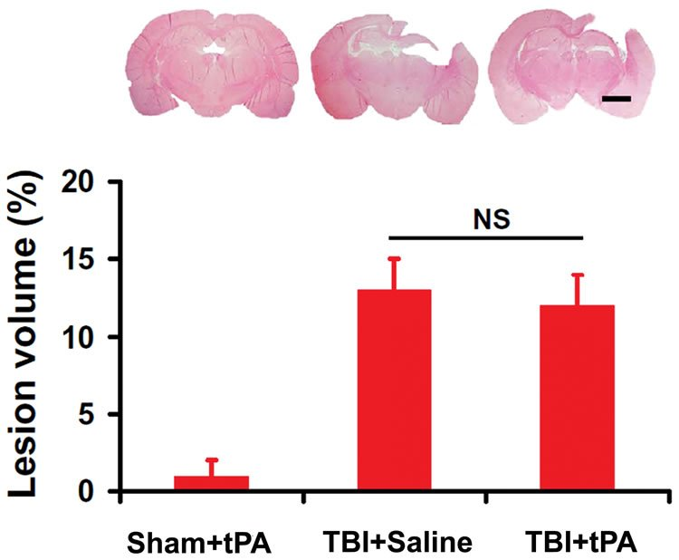 This image shows a bar chart and brain slices which show the cortical lesion volume after tbi and tpa treatment.