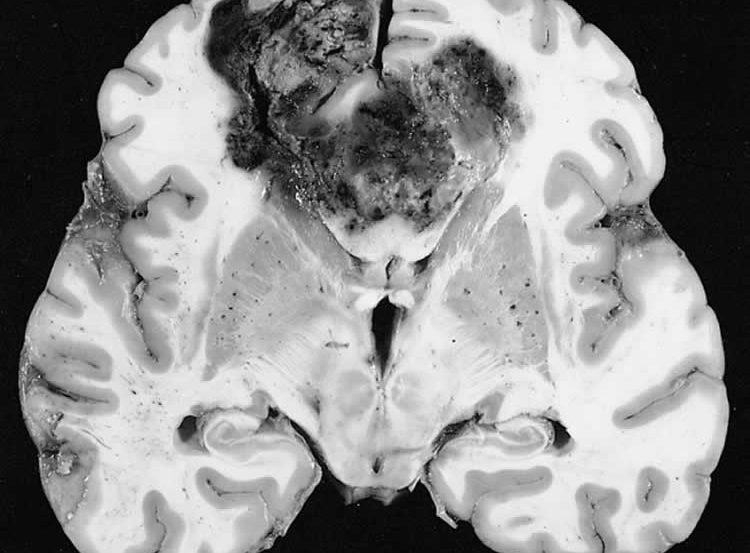 This image shows a brain slice with a glioblastoma tumor which is in the butterfly configuration.