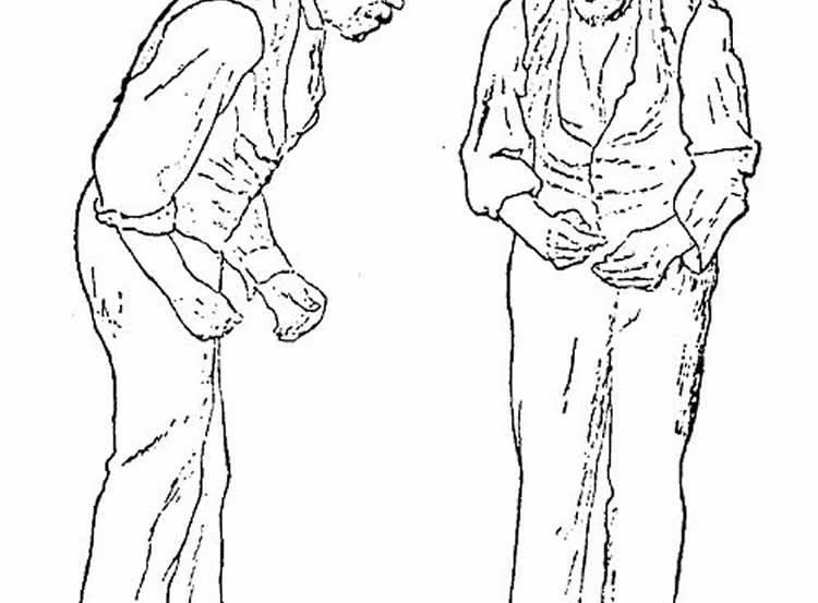 This image shows Sir William Richard Gowers' 1886 illustration which was part of his documentation of Parkinson's disease.