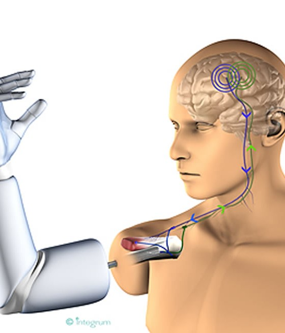 Mind controlled prosthetic arm
