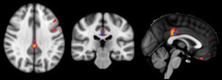 The image shows comparison MRI brain scans.