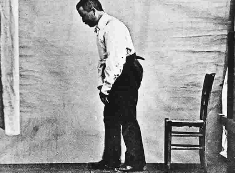 This image shows a Parkinson's patient in a flexed walking posture.