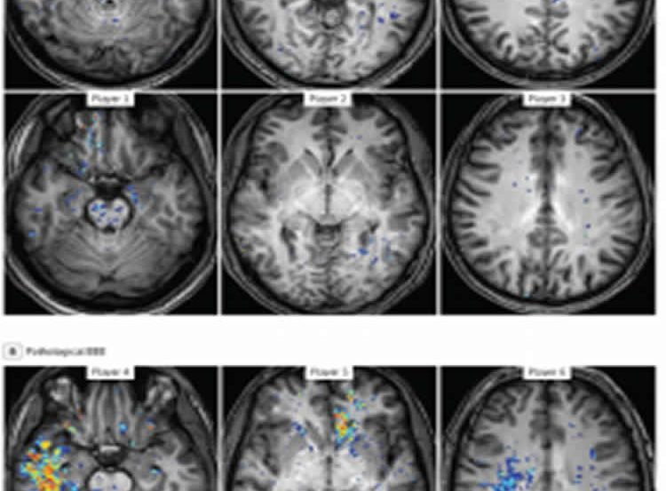 This image shows MRI brain scans taken from the study.