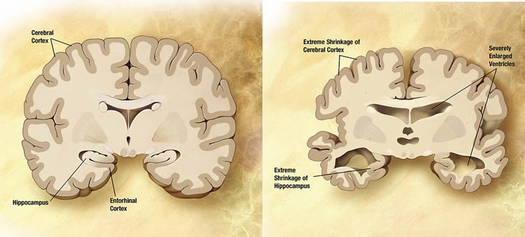 This image compares a brain of a normal person with that of an alzheimer's patient.