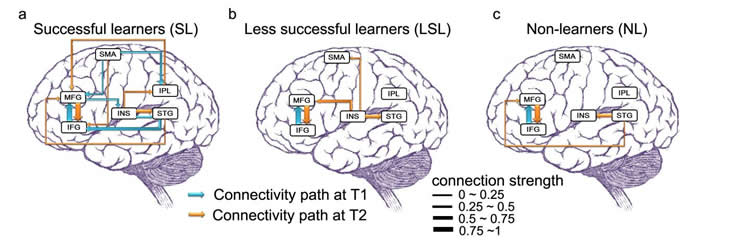 This image shows schematics of connectivity in the brain.