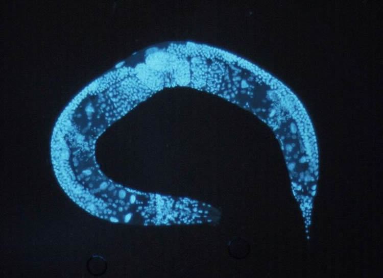 This image shows a C. elegans.