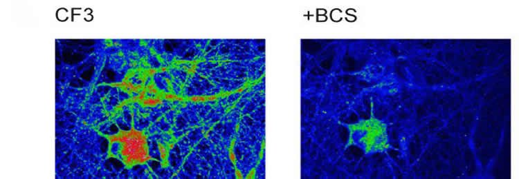 The image shows hippocampal neurons.