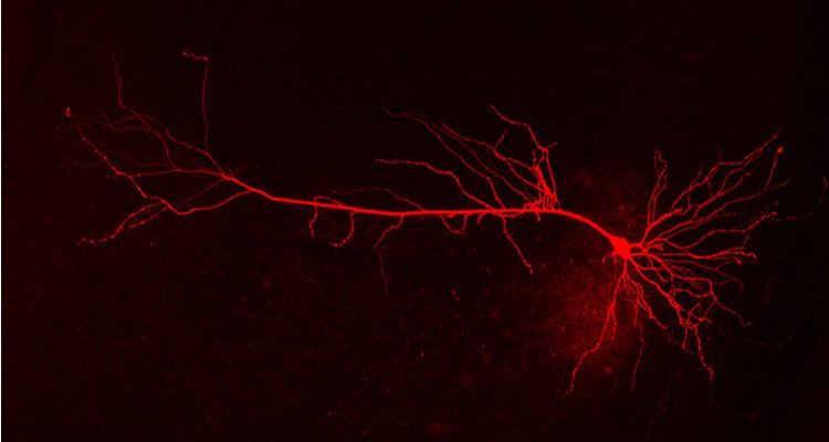This image shows a neuron in red.