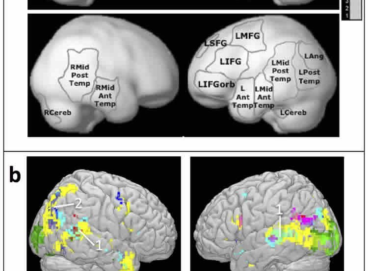 The image shows fMRI scans taken during the research.