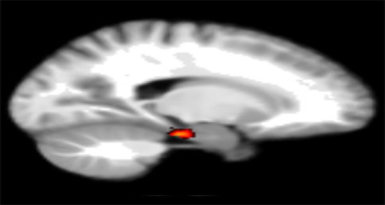 The image shows the location of the entorhinal in the brain.