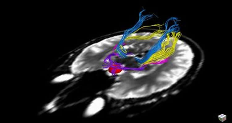 The image shows colored lines representing the human visual pathway overlayed onto an MRI scan of a human head.