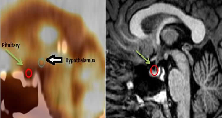 This image shows the MRI and PET/CT brain scans of a patient with PTSD.