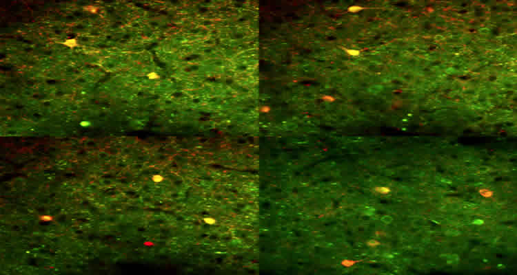 The image shows neurons from the primary visual cortex of an awake mouse.