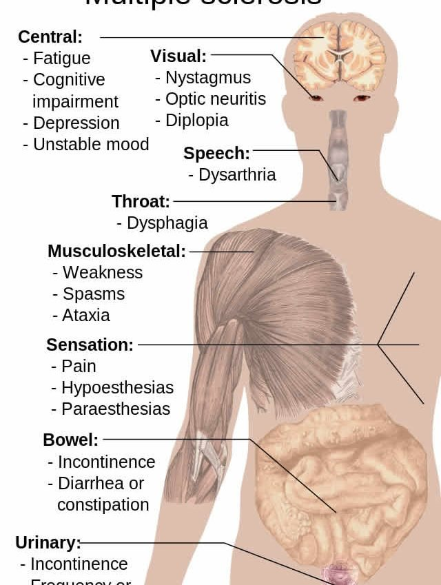 The image is a diagram showing the effects MS has on the human body.