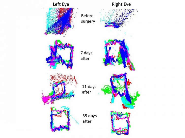 The image shows how the eye movements returned to normal after surgery.
