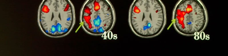 The image shows fMRI scans taken from the research.