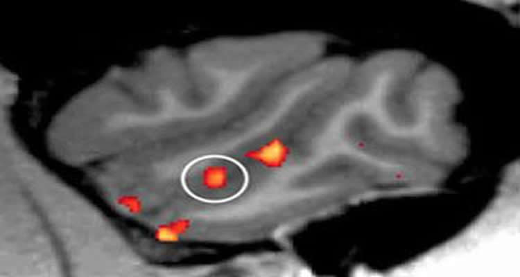 The image shows a brain scan with the facial processing area of the brain highlighted in orange.