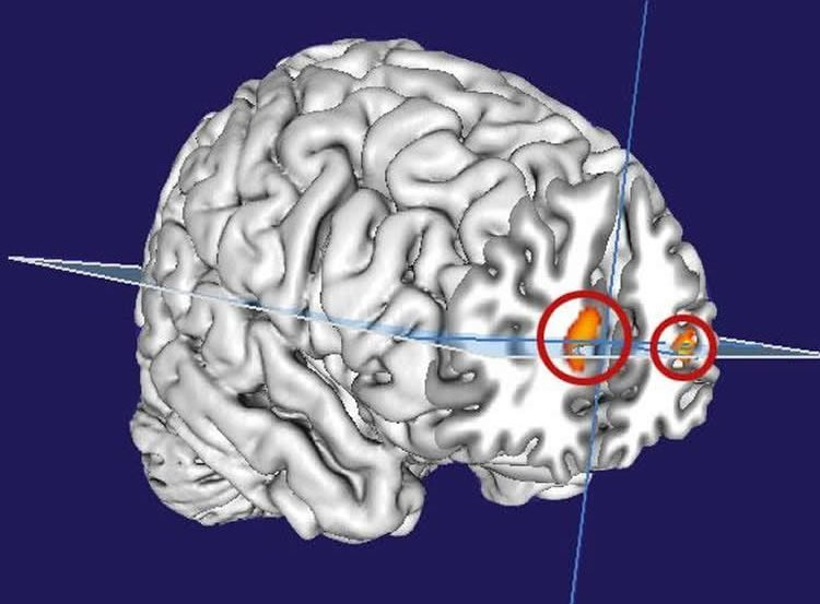 This image shows a computer generated representation of the brain with the prefrontal cortex highlighted in red and orange.