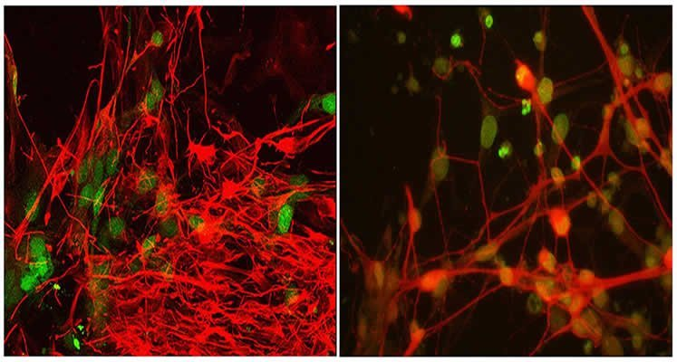This image shows the stem cell derived motor neurons from an ALS patient.