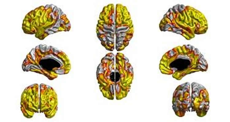 This image shows the difference in cortical thickness in a smoker's brain.