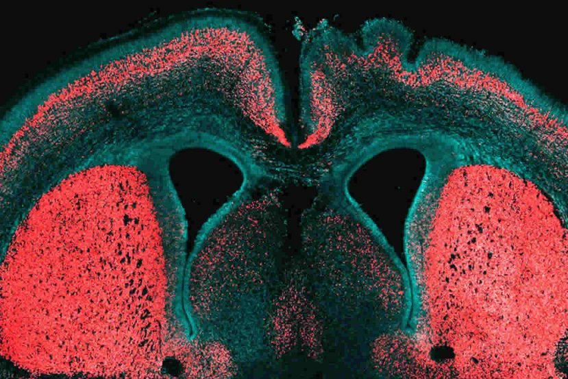 This image shows a brain slice of an embryonic mouse cerebral cortex. The caption best describes the image.