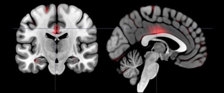 This image shows brain scans with higher levels of gray matter marked in red.