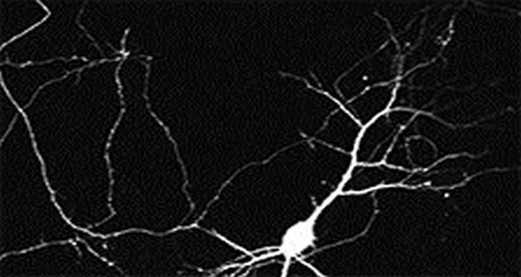 This image shows a neuron.