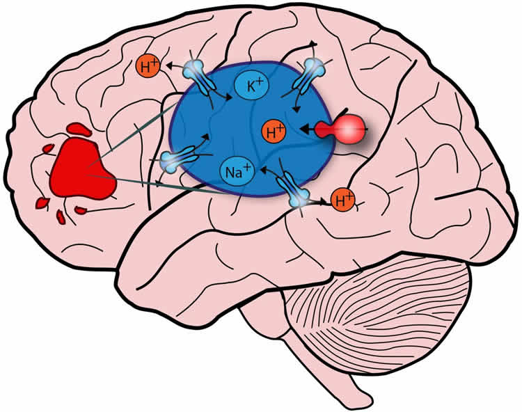 This image is a drawing of a brain. The overactive NHE9 protein is shown in blue over the brain.