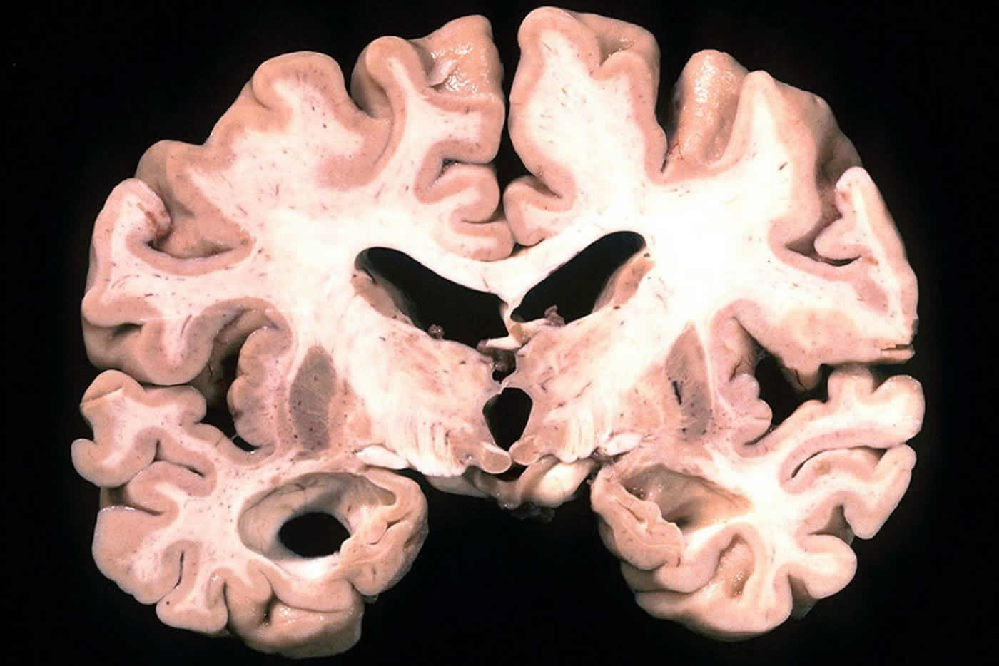This image shows a brain slice take from a person with Alzheimer's disease.