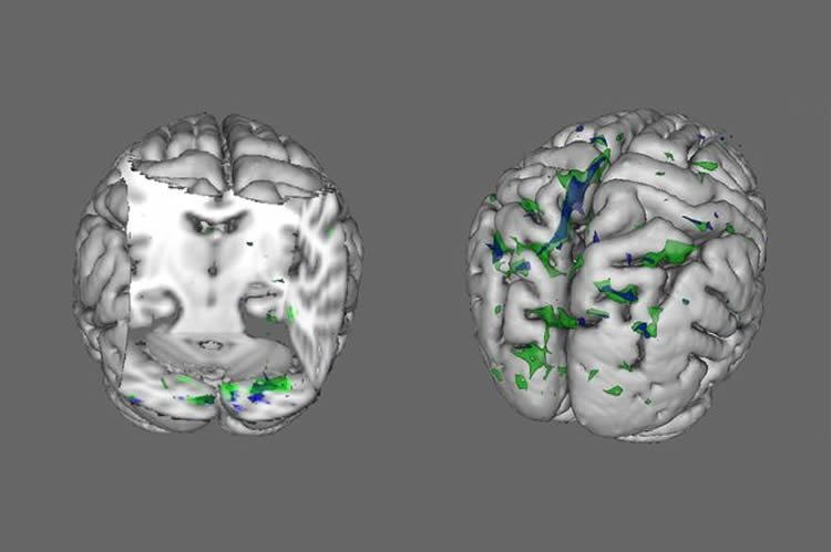 This image shows the brain activity in those with anorexia and BDD.