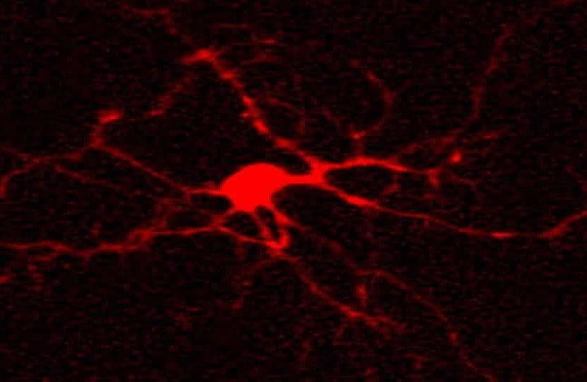 The image shows biocytin in a neuron.