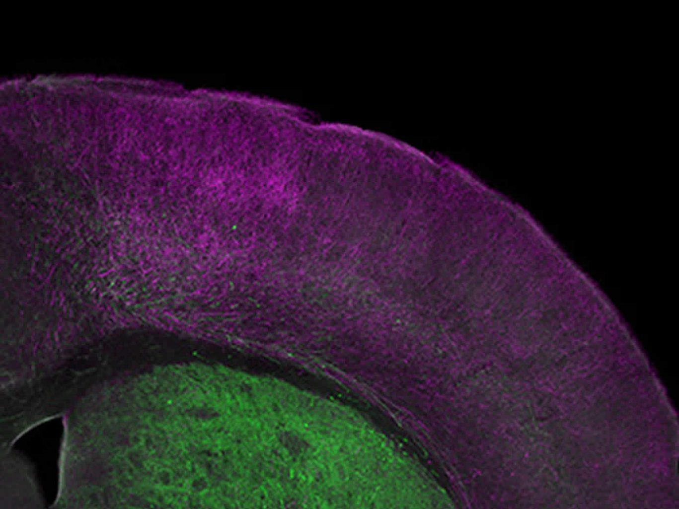This image shows a microscopic view of the frontal cortex of a mouse.