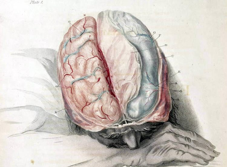 This is a drawing of a sleeping person with their brain exposed.