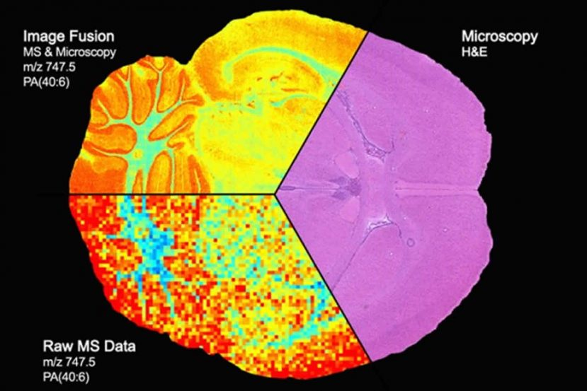 Images show how the technologies work together on a brain scan.