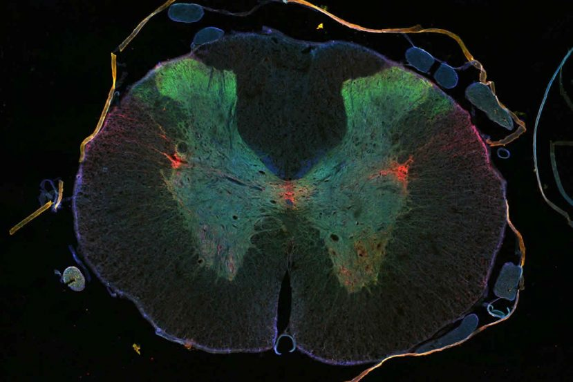This illustration shows the axons, synapses and motor neurons stained in a cross section of a rat's spinal cord.