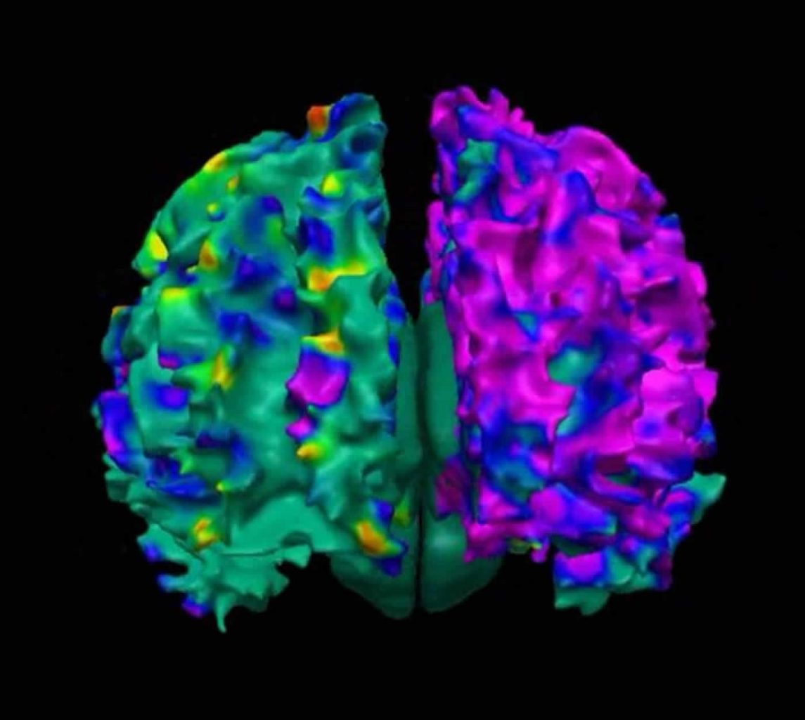 Image shows the effects of polycyclic aromatic hydrocarbons (PAH) on the developing brain.