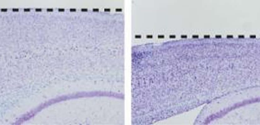 This image shows two sections of cortex, one froma a control mouse and the other from a mouse with the presenilin-1 mutation.